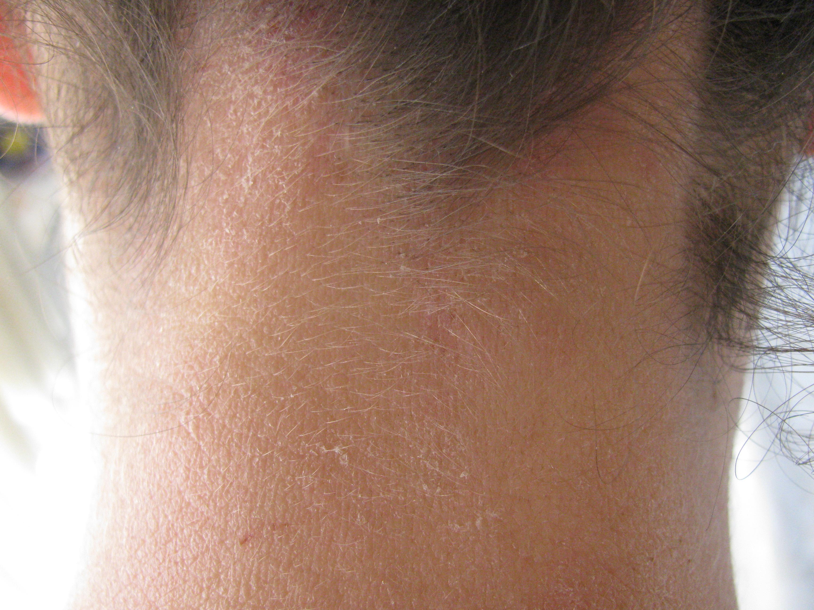 עורף עליון לפני טיפול 14 (1)